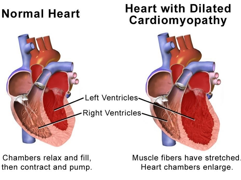 a nurse is assessing a client who has dilated cardiomyopathy-1