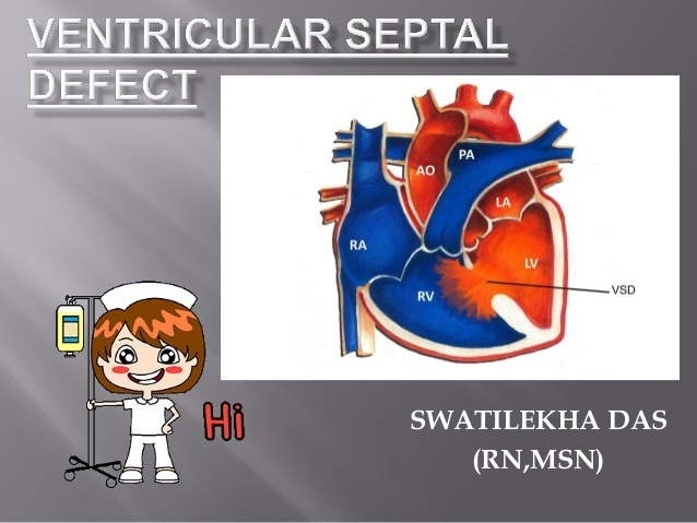 a nurse is assessing an infant who has a ventricular septal defect-1