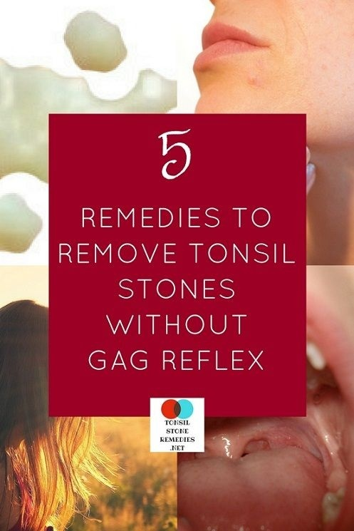 how to get rid of tonsil stones without gagging-0