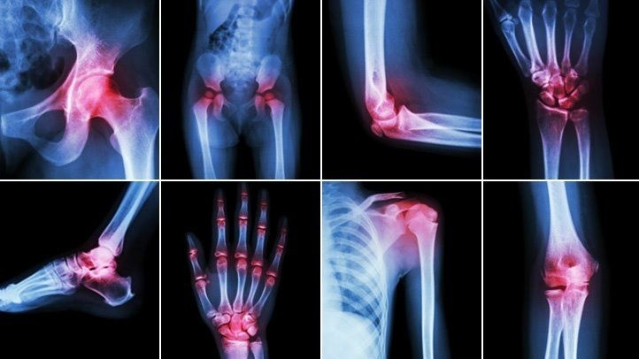 identify the correct main term for a patient who is diagnosed with joint pain-2