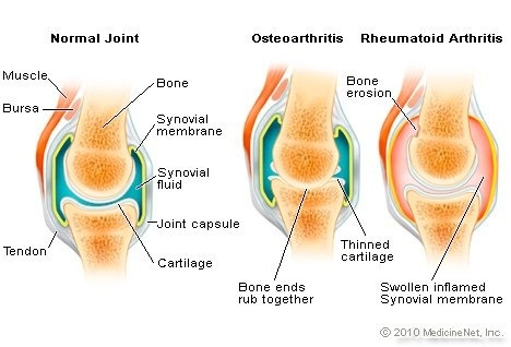 identify the correct main term for a patient who is diagnosed with joint pain-3