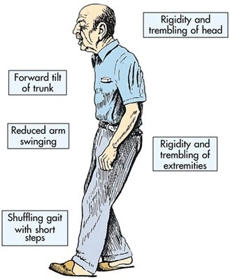 which extrapyramidal side effect is noted by a client who has bradykinesia and a shuffling gait?-0