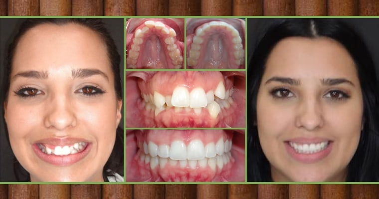 who is not a good candidate for invisalign-0