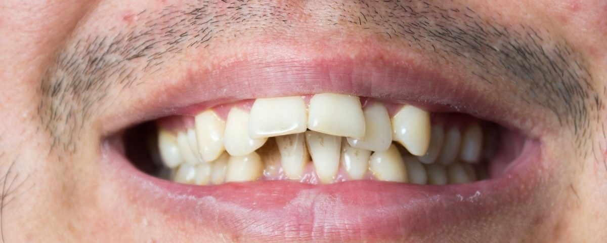 who is not a good candidate for invisalign-1