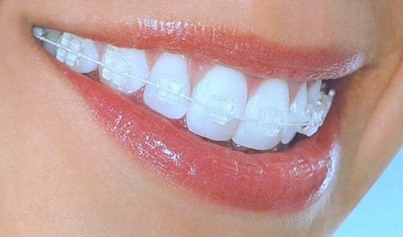 who is not a good candidate for invisalign-3