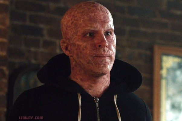 deadpool without his mask-6