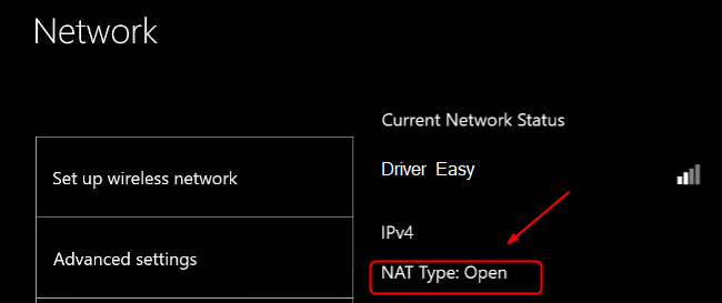 network settings blocking party chat xbox one-8